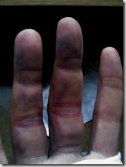 Finger unmittelbar nach der Luxation