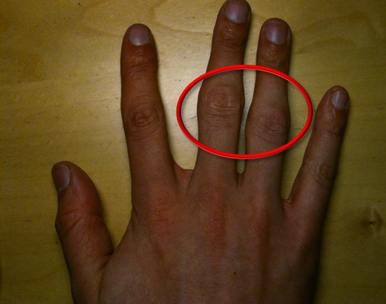 Geschwollene Fingergelenke